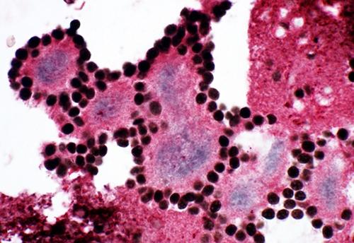 三重免疫染色